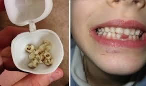 Médicos alertam para que mães guardem os dentes dos filhos para salvar sua vida