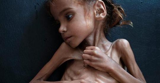 Iêmen: a guerra que já matou 85 mil crianças de fome, mas ninguém comenta